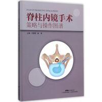 脊柱内镜手术策略与操作图谱 广东科学技术出版社