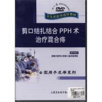 剪口结扎结合PPH术治疗混合痔DVD( 货号:22221000900)