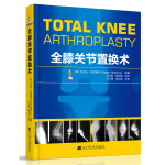 全膝关节置换术