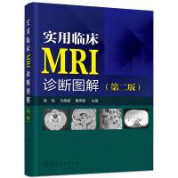 实用临床MRI诊断图解(第二版)