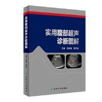 实用腹部超声诊断图解 正版 刘学明、蒋天安 9787117269483