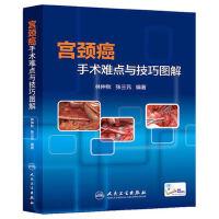 宫颈癌手术难点与技巧图解 林仲秋 张三元 人民卫生 9787117189248