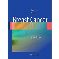 【�A�】Breast Cancer 9781849963138