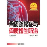 骨质疏松症与骨质增生防治(第3版) 邵有全 禄海萍 金盾出版社