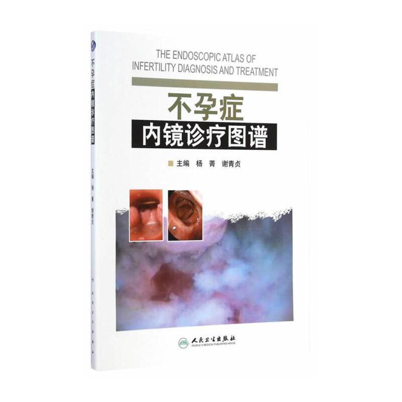 症内镜诊疗图谱 杨菁,谢青贞 主编 人民卫生出版社 9787117196000 正版书籍!好评联系客服有优惠!谢谢!