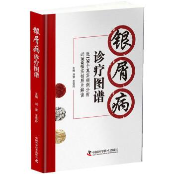 银屑病诊疗图谱 刘荣,王雪玲 中国科学技术出版社 正版书籍,下单即发。好评优惠